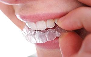 http://www.kayadent.com/wp-content/uploads/2015/12/telsiz-ortodonti-e-cligner.jpg